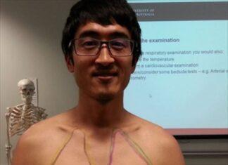 オーストラリアの医学生が1年半で学ぶ13の身体検査